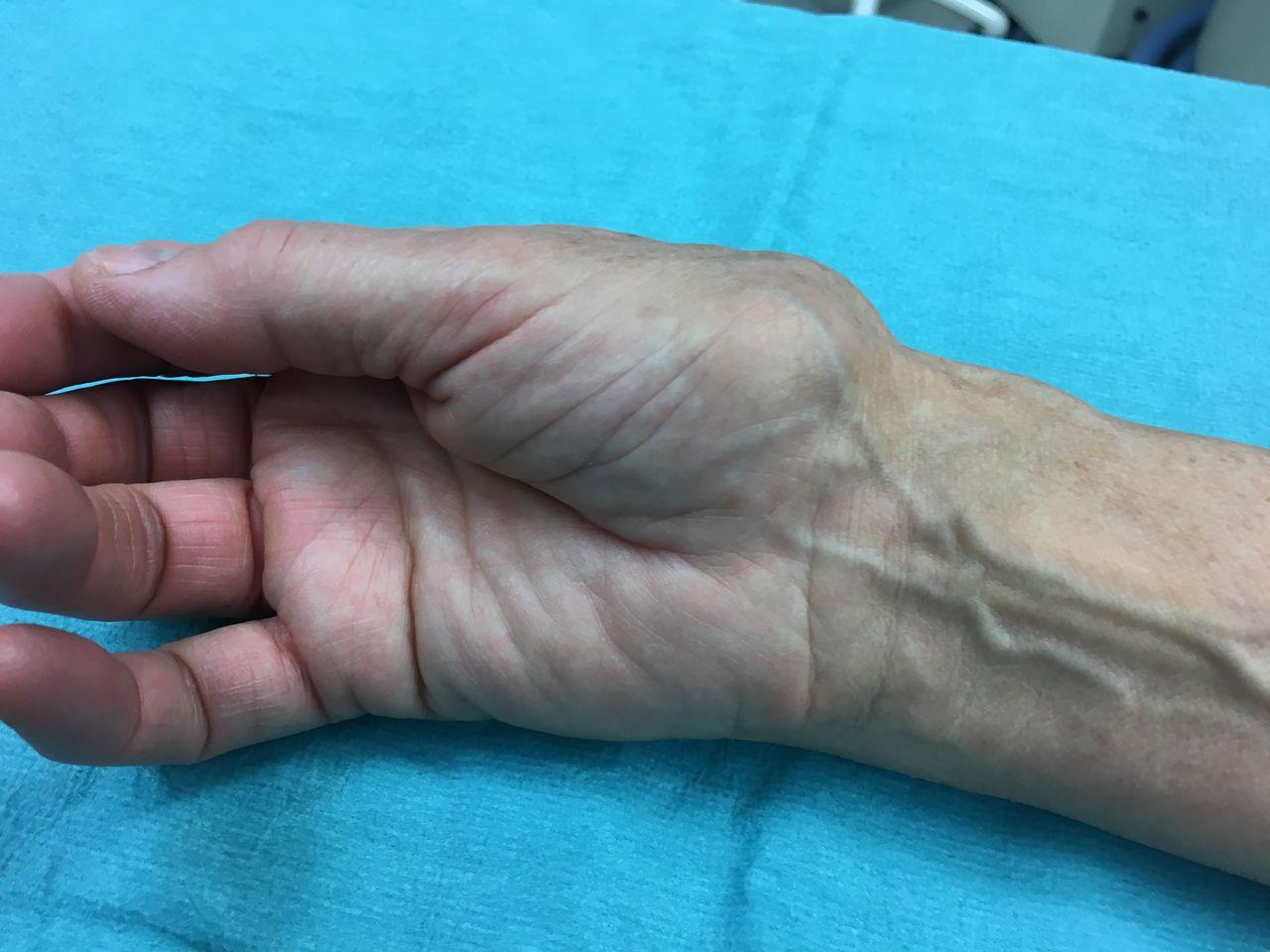 Rhizarthrose Röntgen und Hand