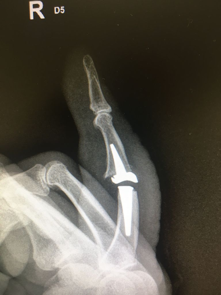 Arthose Finger künstliches Gelenk