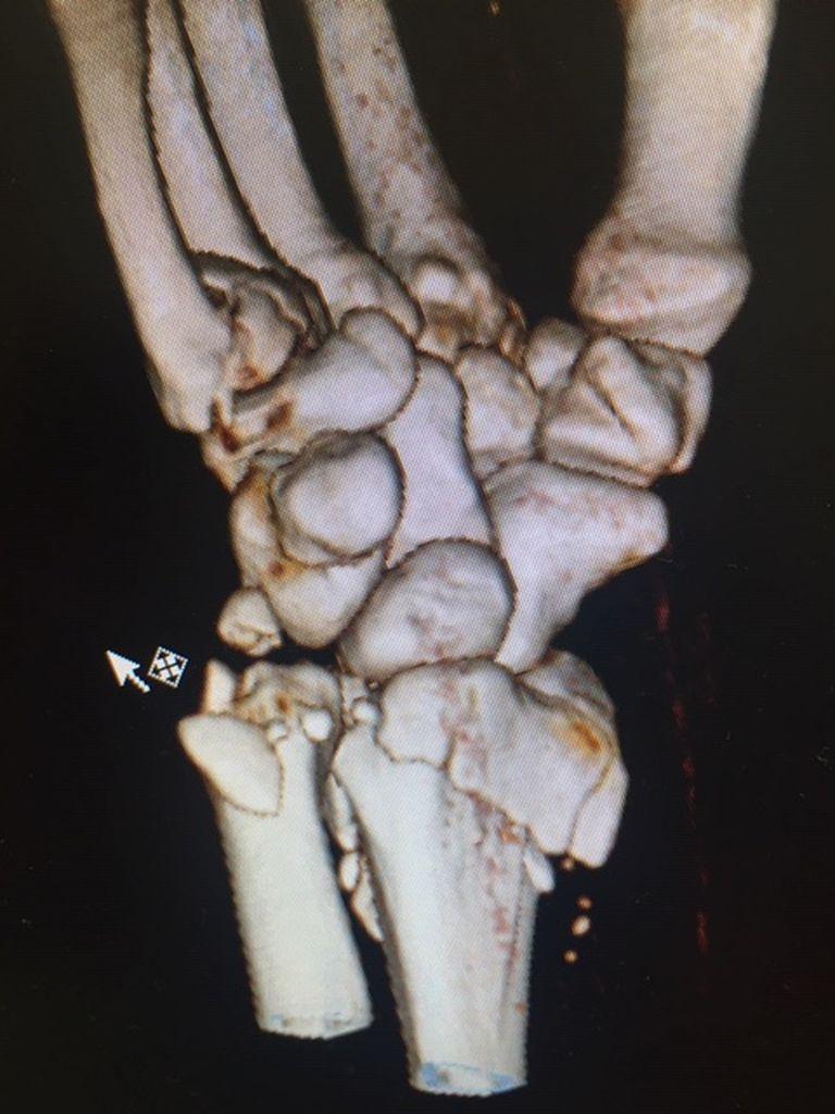 Bruch Handgelenk vor und nach OP